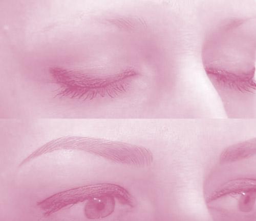 eliminar la micropigmentacion con laser